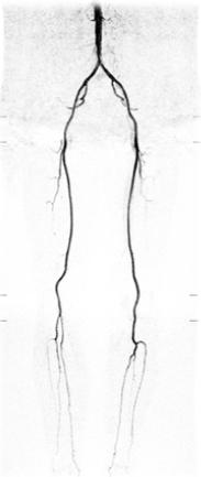 非造影の下肢動脈画像