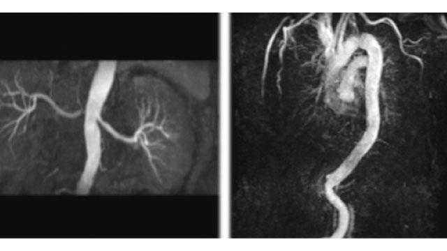 左:腎動脈(非造影のMRI画像) 右:胸部大動脈(非造影のMRI画像)
