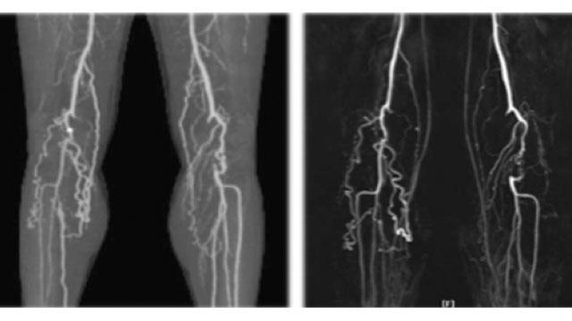 膝窩動脈 左:造影剤を使用したCT画像 右:非造影のMRI画像