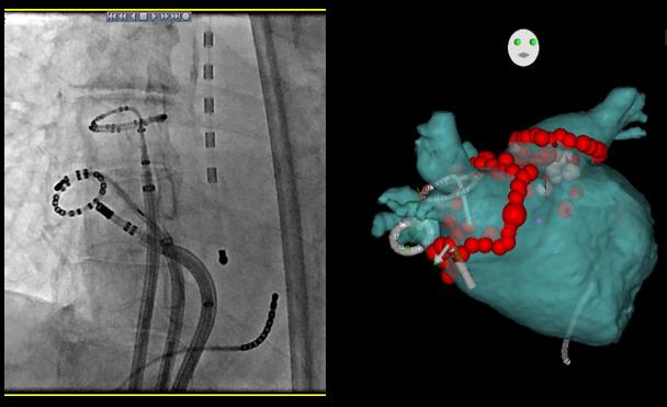 3Dマッピングシステム(CARTO)を用いた肺静脈隔離術