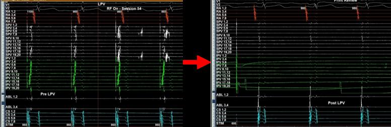 アブレーション前後での心内心電図(肺静脈内電位の消失)
