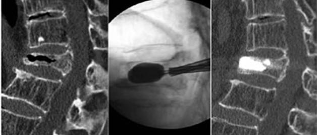 経皮的椎体形成術