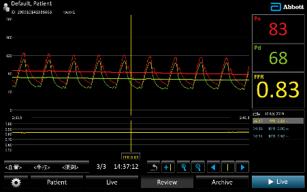 FFRワイヤを右冠動脈に留置し測定。 FFRが0.8以下であればステントに よる血行再建を行う。