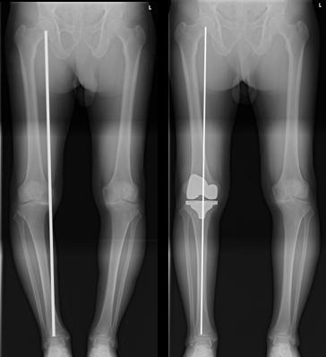 図2b 術前後の立位長尺